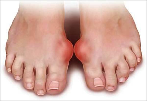bệnh gout gây yếu sinh lý