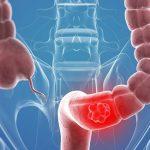 Chế độ ăn cho người bị bệnh ung thư đại, trực tràng